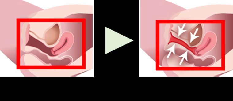 膣の引き締めイメージ