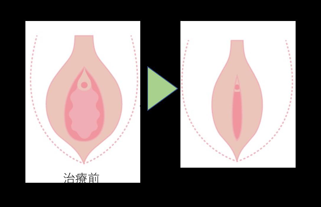 お湯漏れ施術のイメージ